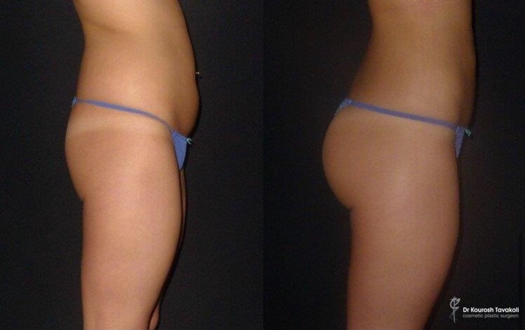 Before and After Buttock Augmentation by Dr Tavakoli. Liposuction to lower flanks (hips), abdomen and arms followed by purified fat transfer to create a perky, shapely buttocks whilst remaining in proportion to her figure. Patient photographed at 4 weeks post surgery.