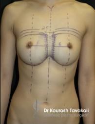 Congenital Symmastia Repair