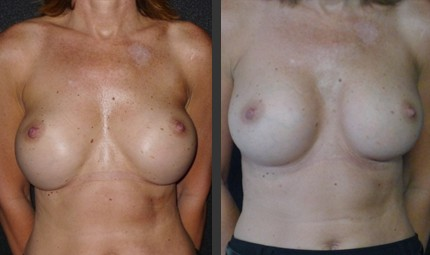 Breast implant bottoming out correction