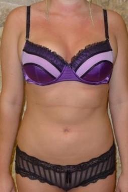 After Vaser Liposuction picture - case study 1