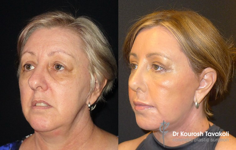 51yo female, Before and After, Full Face and Neck Lift, Blepharoplasty and Rhinoplasty. Fat grafting to mid and lower face.