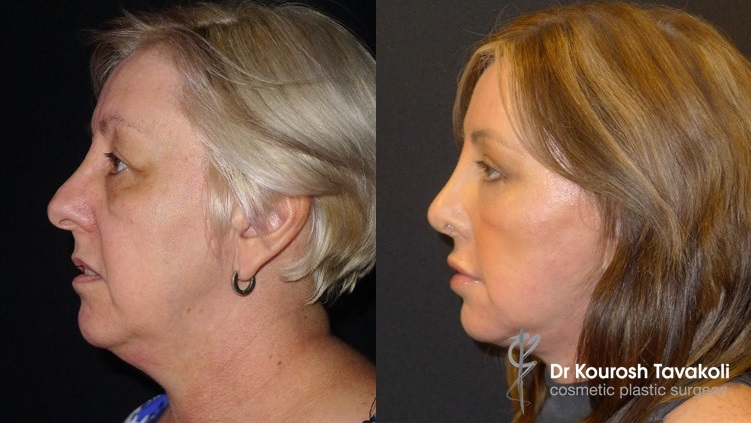 51yo female, Before and After, Full Face and Neck Lift, Blepharoplasty and Rhinoplasty.