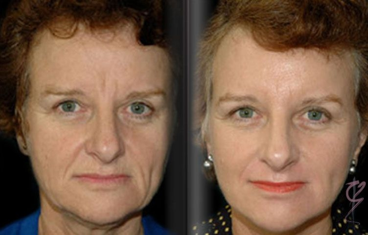 Before and After Rhytidectomy (Face Lift).