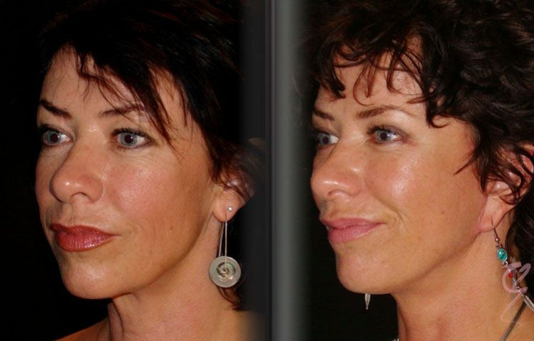 40 yo Female, Shortscar Facelift, Upper and lower Blepharoplasty, Anti-wrinkle Injection to forehead.