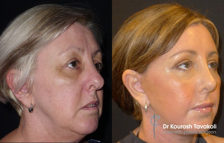 Facial Fat Graft Case Study Image 1 - Side View