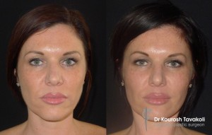 Facial Fat Graft Case Study 3 - Front View