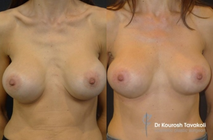 Fat Grafting (35mL) to cleavage to correct rippling of implants. Implants removed and replaced with Mentor CPG 332-350cc anatomical, tall height, moderate plus projection, anatomical implants placed in a dual plane pocket.