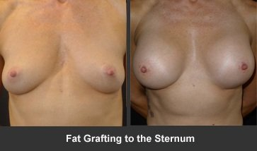 Fat Grafting to the Sternum Before and After Picture