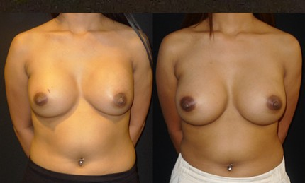 Before and after photos of ruptured breast implant replacement - front view