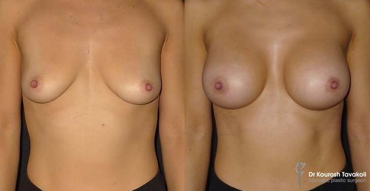 Green zone - deflated breasts before and after breast lift / mastopexy.