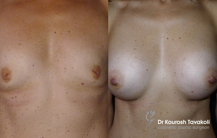 Inverted Nipple Correction.