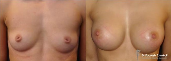 Inverted Nipple Correction combined with breast augmentation.
