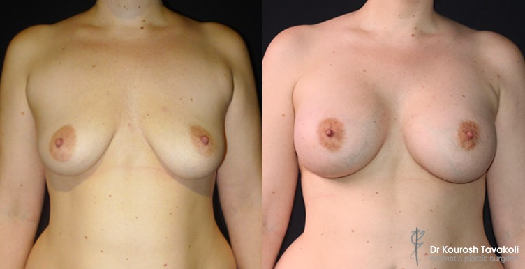 Bilateral breast augmentation to correct ptosis using Mentor CPG 333 485cc implants.