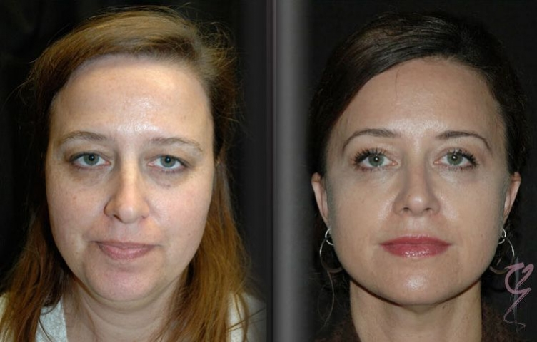 Before and after neck lift.