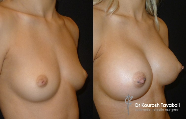 Inverted Nipple Correction combined with breast augmentation. For mild cases a nipple piercing is used to correct inverted nipples, the piercing needs to stay in for 6 months post op.