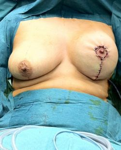 Operative sequence of mastopexy breast lift 2