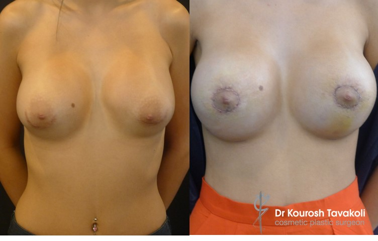 24yo female, bilateral removal and replacement of breast implants combined with bilateral benelli lift for correction of double bubble. Internal bra technique used to re-position implant pocket and improve fullness in upper pole of the breasts.