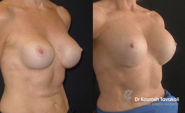 Patient presented with capsulectomy, reaugmentation entailed Benelli Mastopexy, pocket change from Subglandular to Submuscular using internal bra technique, and upsize to CPG 380cc-333 anatomical implants, placed in dual plane pocket.