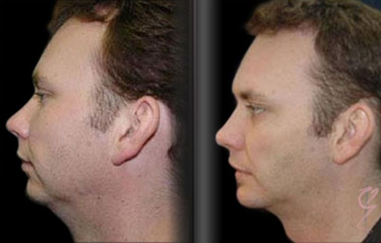 29 year old man with Liposuction to the neck region and insertion of customised silicone implant via intraoral approach