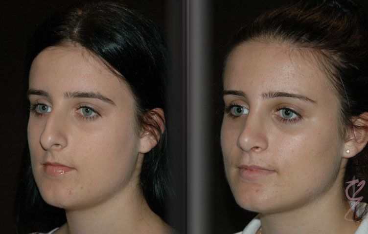 Choosing the Best Rhinoplasty Surgeons in Sydney