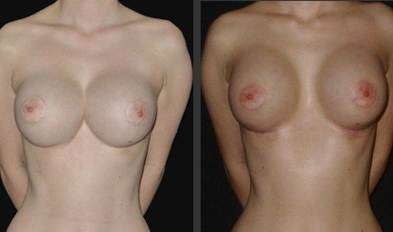Scarring around nipple-areolar area correction