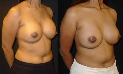 Before and after photos of ruptured breast implant replacement - side view