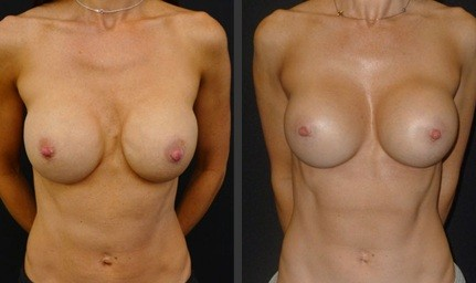 Exchange of breast implant