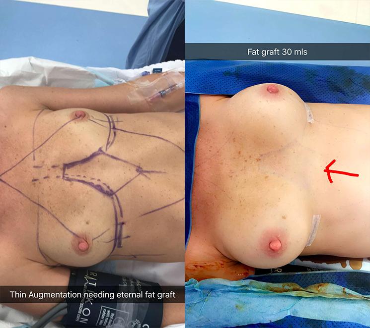 Thin breast augmentation needing external fat graft 30ml.