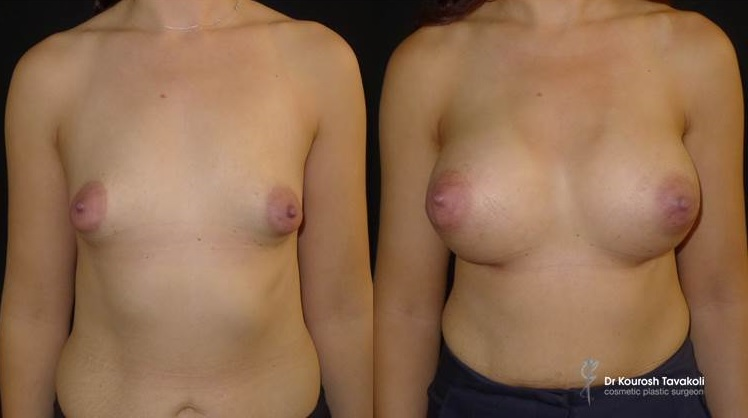 "28 yo female, with Tuberous breast deformity. Mentor CPG 322-375cc anatomical implants placed in a subglandular pocket. Tuberous scoring of the fascia and ""pop-corning"" technique to the areolas (no breast lift). 50 mls of fat transferred from the inner thighs to the lower breast poles and cleavage."