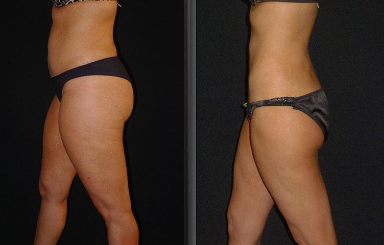 Liposuction (Liposculpture) – Liposuction Surgery Sydney