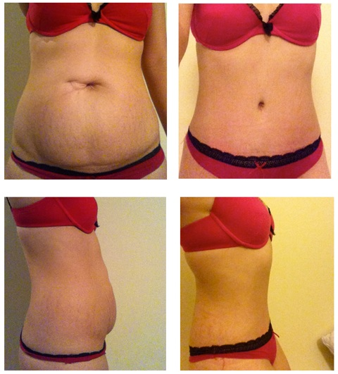 Tummy Tuck after pregnancy - before and after photos