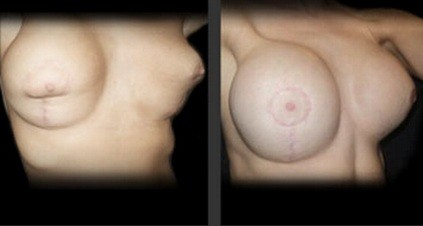 Thai breast augmentation double bubble correction