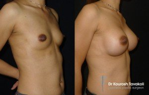 Ethnicity and its effect on breast enhancement