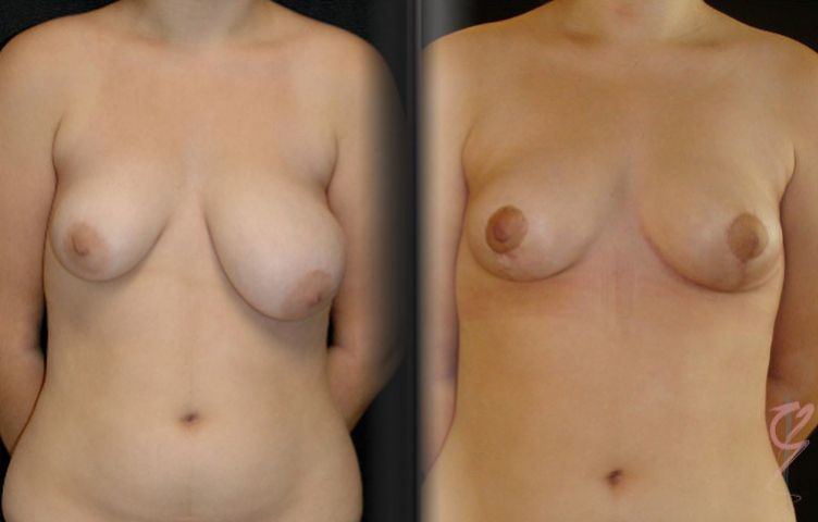 Breast Reduction performed to correct assymetry.