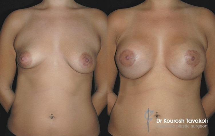 Asymmetry corrected with breast augmentation and lift.
