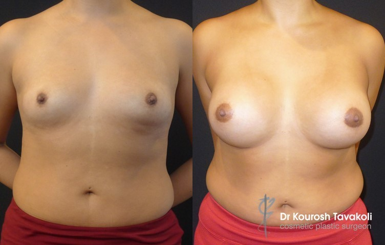 Fat Graft to bottom of breast - Pure Fat injected to cleavage area. Right: 430cc Left: 430cc 20 mls fat from abdomen to left breast to treat double-bubble.