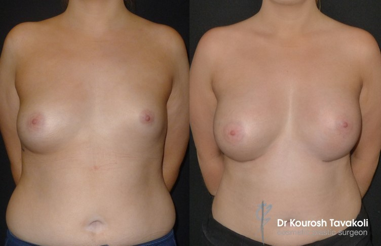 24 year old female, asymmetrical breasts Right size: 180cc Left size: 330cc gel implant 100mls of fat grafting to the left breast.