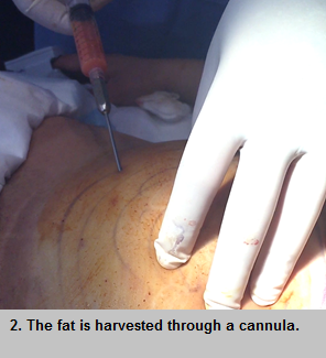 Fat graft for breast surgery procedure - step 2