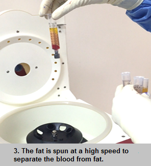 Fat graft for breast surgery procedure - step 3