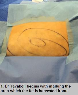 Fat graft face surgery procedure - step 1