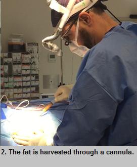 Fat graft face surgery procedure - step 2