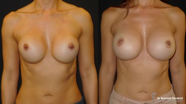 Re-augmentation by Dr Tavakoli correcting grade 2-3 capsular contracture. Round implants removed and replaced with CPG 333-485cc anatomical implants. Internal Bra technique was used with permanent sutures to secure the implant pocket. A total of 40 mls of fat was transferred to the cleavage.