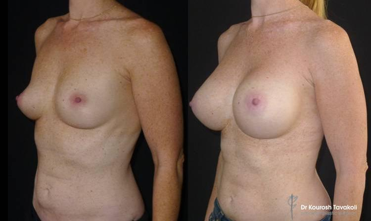 Bilateral Breast Augmentation using Mentor CPG 333-430cc anatomical implants placed in a dual plane, submuscular pocket.