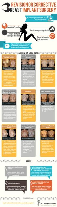 Corrective Breast Implants Infographic