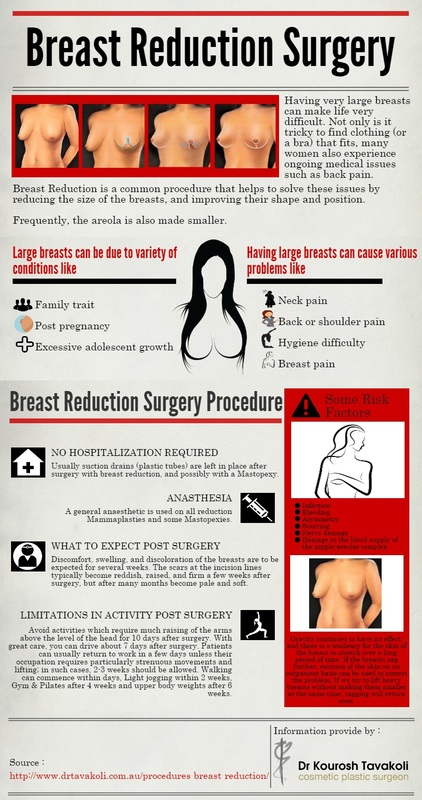 Breast Reduction Surgery Infographic