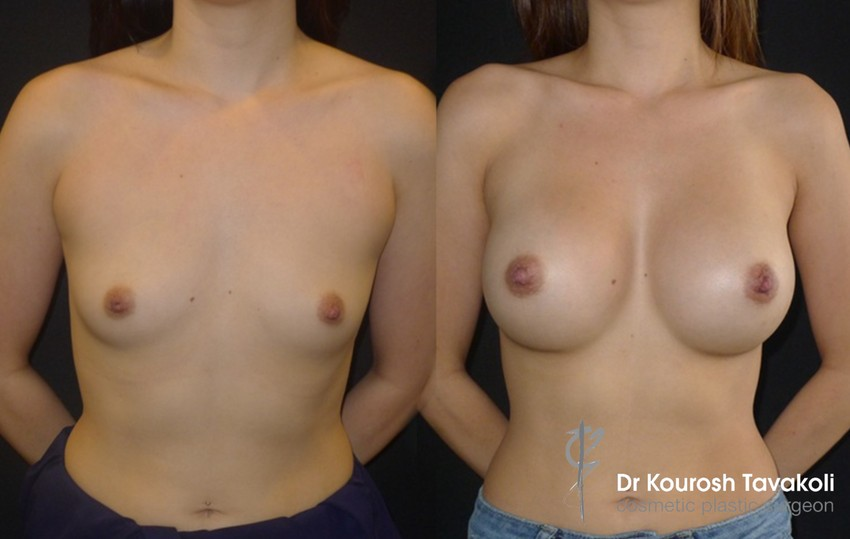 29yo female, Asian, nil pregnancies, short fold and narrow chest wall, CPG 380cc-333 high profile anatomical (teardrop) silicone gel implants, dual plane pocket, height 5'6.