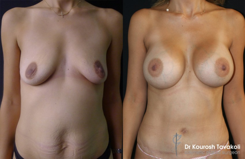 mummy makeover cobined with scarless breast lift