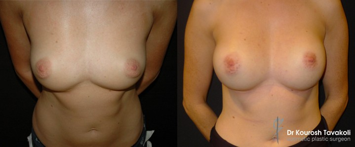 Before and after congenital symmastia correction.
