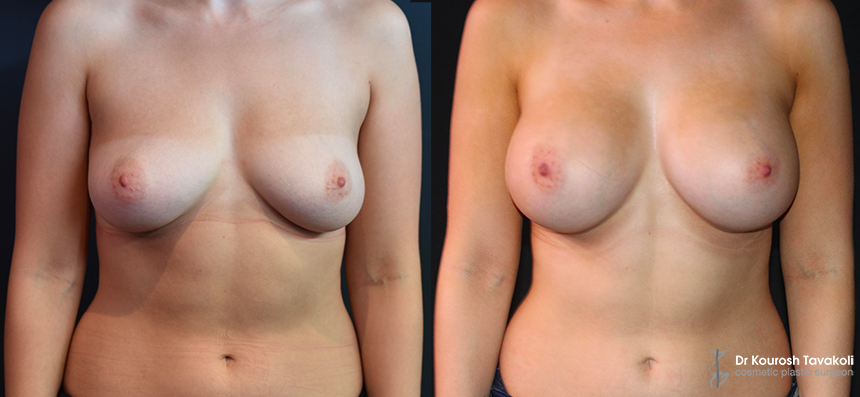 YELLOW ZONE: Bilateral breast augmentation using Mentor CPG 333 330cc high profile implants.