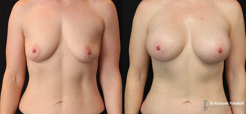 YELLOW ZONE: Bilateral breast augmentation to correct ptosis. Submuscular placement of Mentor CPG 333 545cc implants.